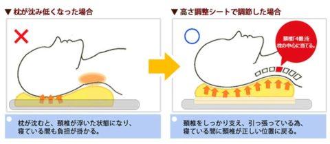 頚椎 隙間